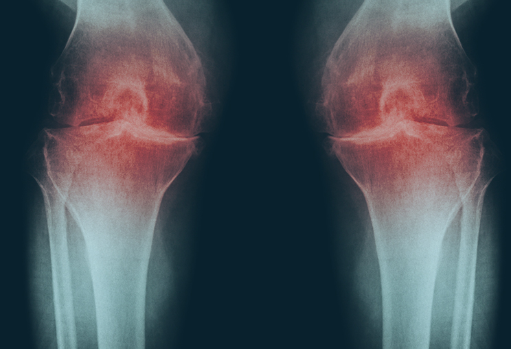 Osteoarthritis Knee Oa Knee Film X Ray Both Knee With Arthritis Of Knee Joint Narrow Knee Joint Space Medical And Science Background